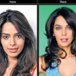 Mallika Sherawat's Lip Surgery